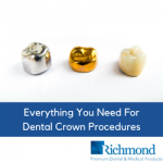 Dental Crown procedures | Richmond Dental